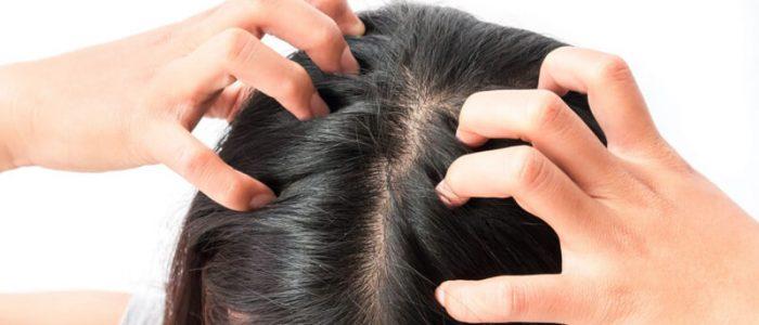 لماذا تظهر القشرة في شعري، وكيف يمكنني التخلص منها؟